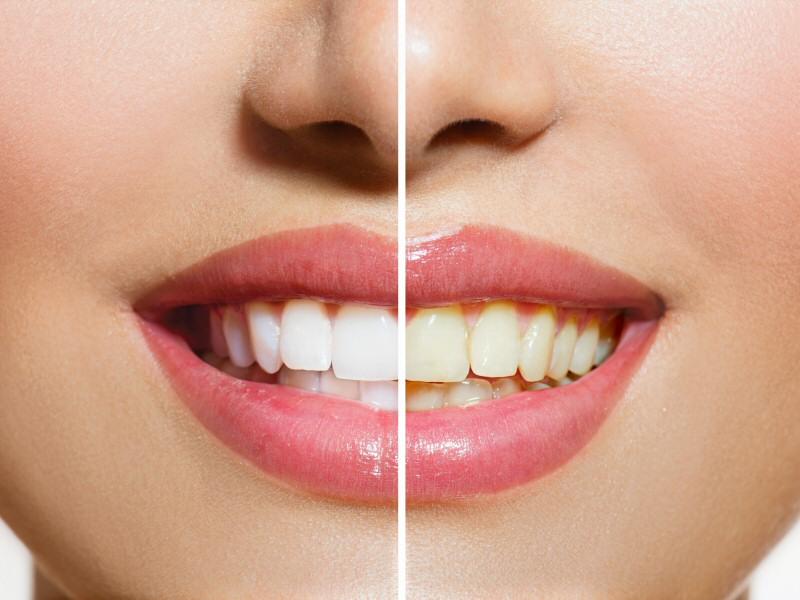 Des belles dents un beau sourire un visage lumineux for Astuce maison pour avoir un beau visage
