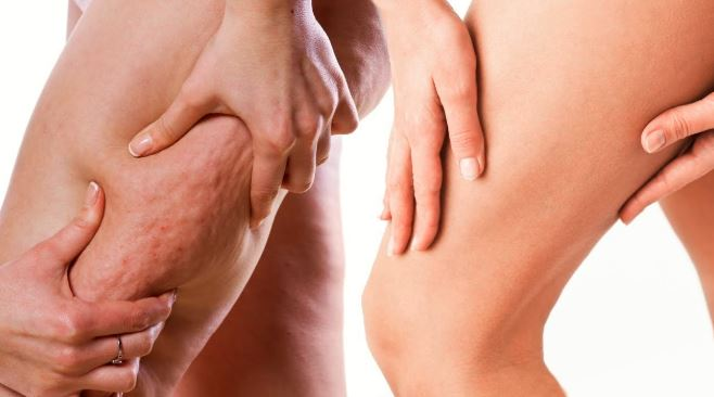 Se débarrasser de la cellulite : comment faire ?